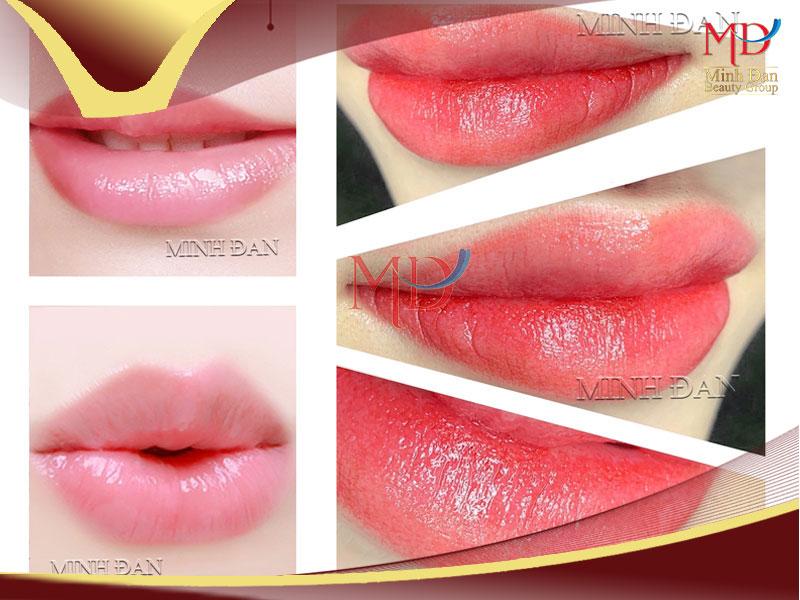 Minh Đan - Phun xăm môi